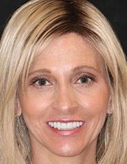 Austin Cosmetic Dentistry | Heidi