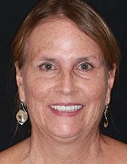 Austin Cosmetic Dentistry   Janet